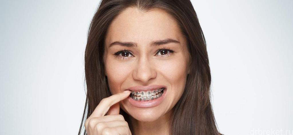 Сколько дней болят зубы после брекетов thumbnail