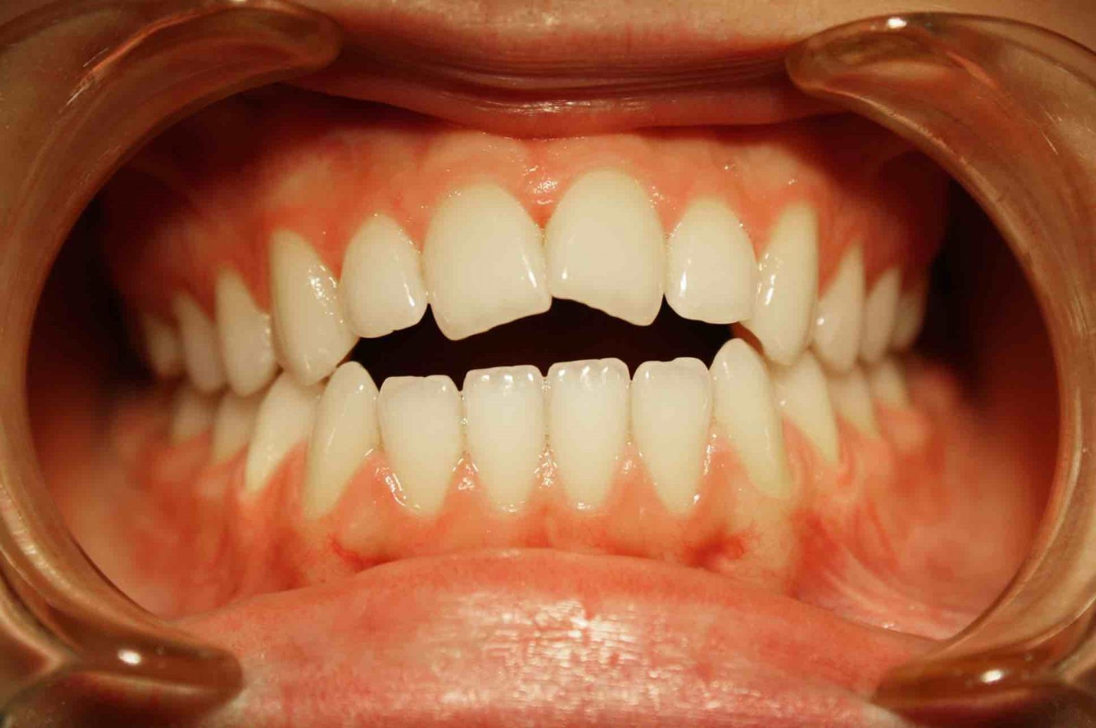 этих фото зубов с винирами используемый строительном объекте